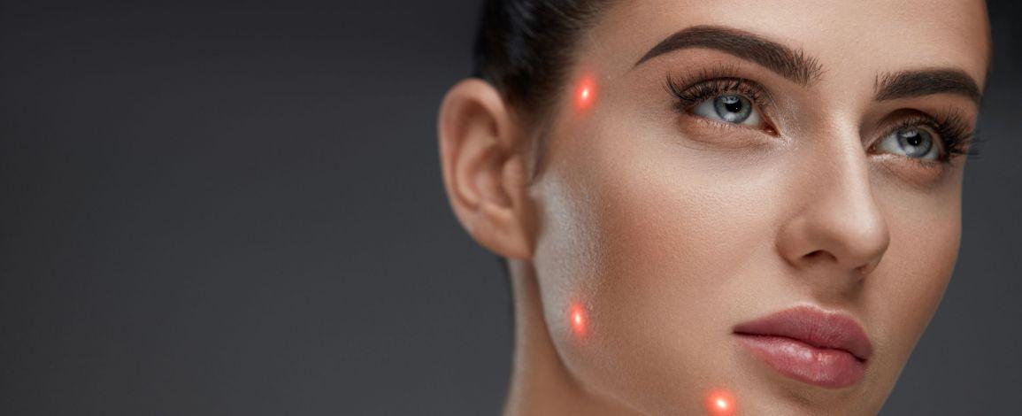 Все о лазерной терапии