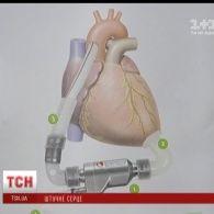 В Україні трансплантували друге механічне серце