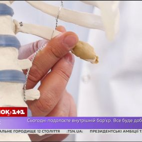 Чому не варто робити операцію з видалення ребер - Лікар Валіхновський