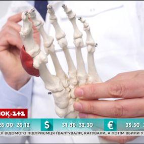 Вальгусная деформация первого пальца стопы - врач Валихновский