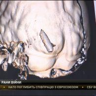 29-річного бійця, який зазнав украй тяжкого поранення на Луганщині, рятують у Дніпрі