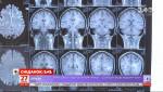 Як розпізнати розсіяний склероз та чим небезпечне це захворювання