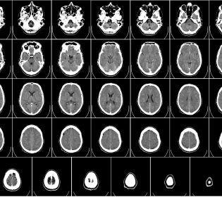 Комп'ютерна томографія може викликати рак